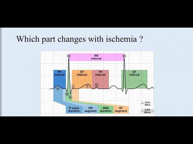 ECG in ischemia