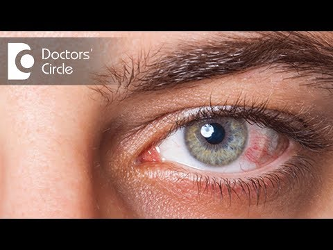 Preventing spread of Conjunctivitis & for how long is it contagious? - Dr. Sriram Ramalingam