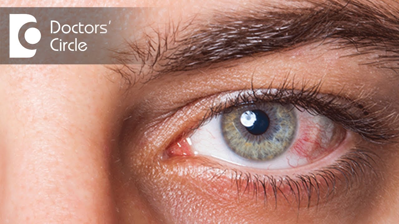 Conjunctivitis. Treatment and prevention