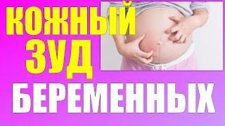 КОЖНЫЙ ЗУД ВО ВРЕМЯ БЕРЕМЕННОСТИ | Что делать если чешется живот во время беременности