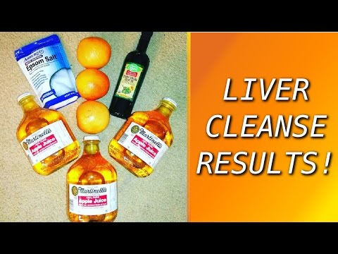 My Liver & Gallbladder Cleanse Experience from Andreas Moritz