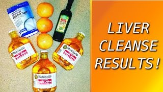 Video My Liver & Gallbladder Cleanse Experience from Andreas Moritz download MP3, 3GP, MP4, WEBM, AVI, FLV Mei 2018