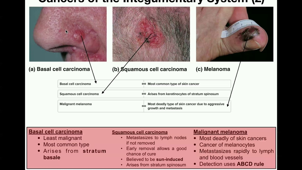 Anatomy The Three Types Of Skin Cancers Youtube