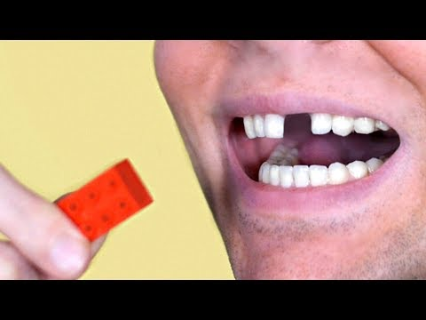 LEGO TOY BREAKS TOOTH!