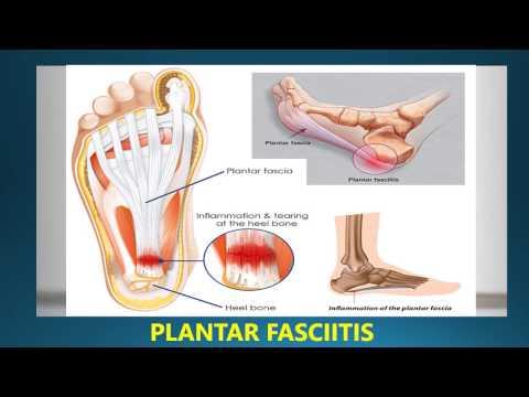 17e7d5fd20 Best Insoles For Plantar Fasciitis 2018 | Plantar Fasciitis Orthotics and  Insoles Reviews - YouTube