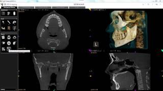 Carestream Dental's CS 3D Imaging Version 3.8 New Features