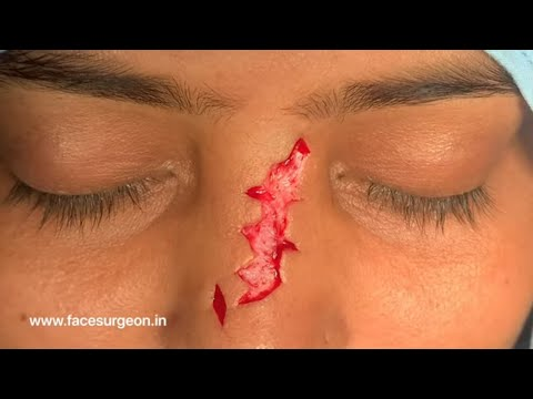 Zig Zag Jigsaw Puzzle Type Scar Removed off Nose with Z plasty