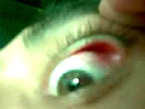 TERRIBLE! Nunca juegues con un cuchillo y tu ojo