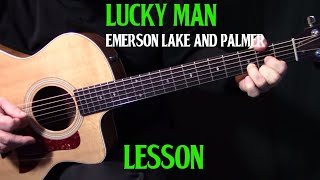 "lesson | how to play ""Lucky Man"" on guitar by Emerson, Lake & Palmer 