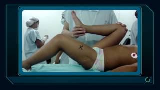 Examen físico osteomuscular paciente de 2 a 10 años