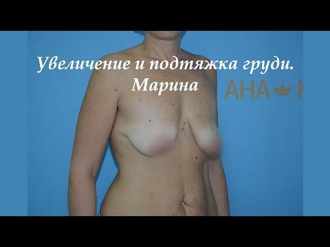 фото и грудей женских клитора