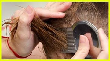 머릿니와 서캐를 빨리 없애는 7가지 자연요법