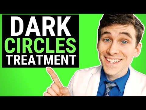How to Get Rid of Dark Circles 7 Pro Tips and Natural Remedies