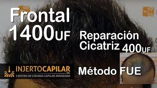 Transplante Capilar X Técnica FUE: 1800 UF