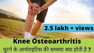 knee osteoarthritis(घुटने के आर्थ्राइटिस) explained in Hindi by Dr. Pankaj Walecha.
