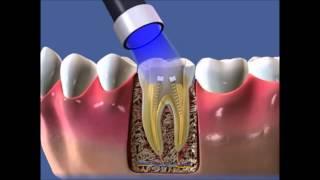 Уроки стоматологии Как правильно пломбировать корневые каналы в зубе(В этом видео мы вам расскажем как пломбируют корневые каналы в стоматологии. Как всегда с вами Дантист..., 2015-08-08T22:05:04.000Z)