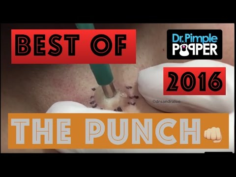Thumbnail: Dr Pimple Popper's Best Punch Removals of 2016