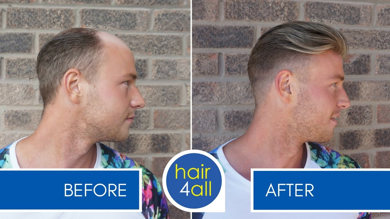 How To Apply Attach A Non Surgical Hair Replacement System For Men With The Basingstoke Boys