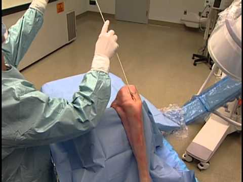 Tibial Nail EX Surgical Technique Video