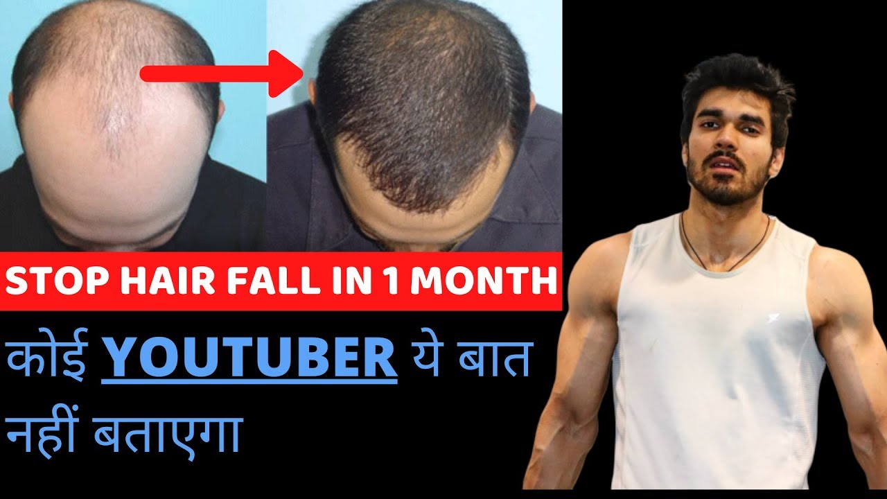 How To Stop Hair Loss And Receding Hairline| Hair Fall Treatement For Men