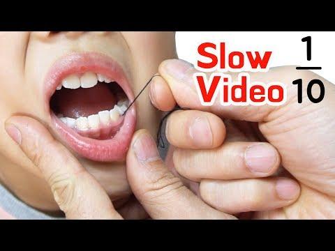 TwinRoozi  Tooth minus 1/10  Slow video 쌍둥이 루지 이 빼기 슬로우 비디오