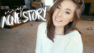 My Acne Story + An Exciting Announcement