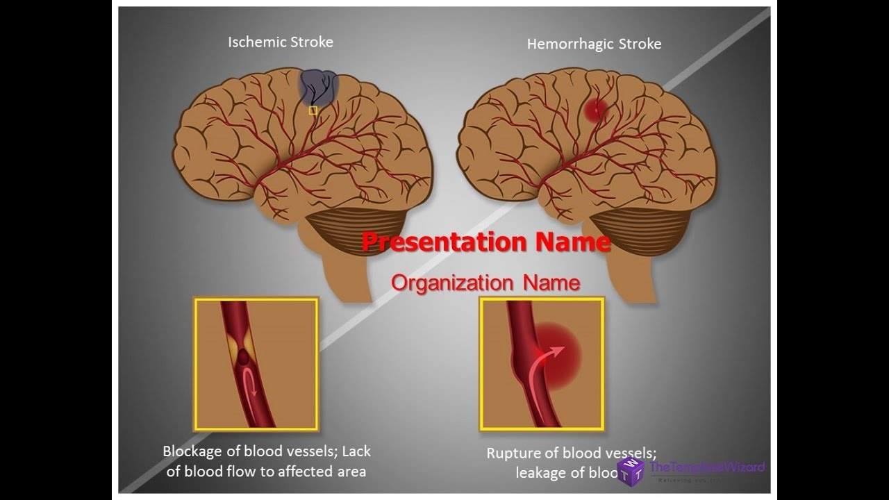 Ischemic Stroke Brain