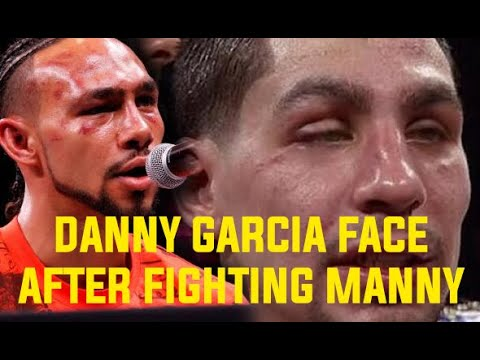 Danny Garcia: I deserve Manny PACQUIAO not Mikey GARCIA or Errol Spence, Watch my fight with THURMAN