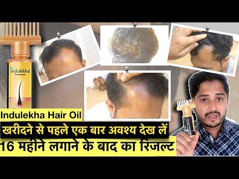 16-महीने-indulekha-hair-oil-use-करने-के-बाद-का-result-।-indulekha-hair-oil-review.
