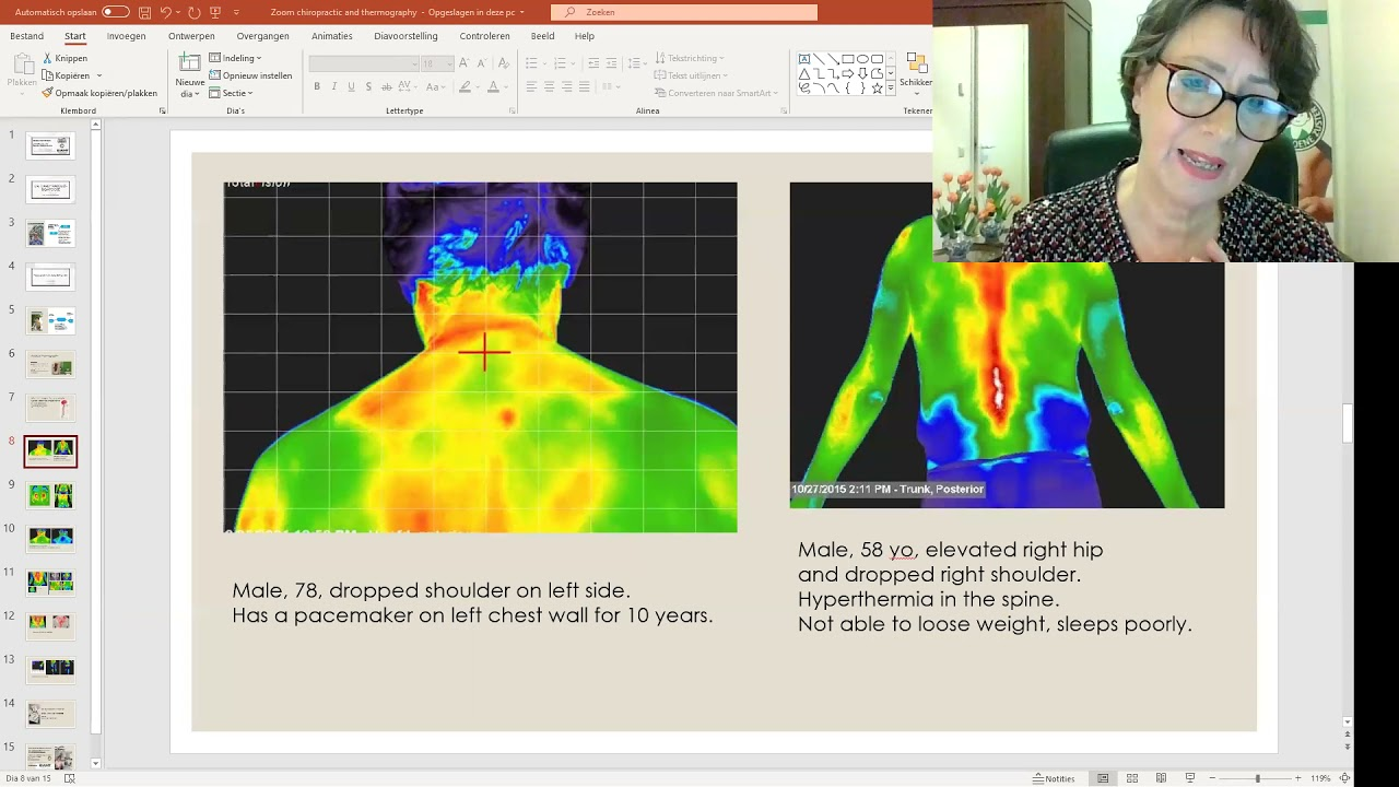 Medical Thermography and Chiropractic Care- De Groene Zuster and Gewoon Chiropractie