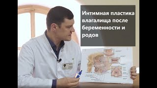 Интимная пластика влагалища после беременности и родов: расширенная кольпоперинеопластика