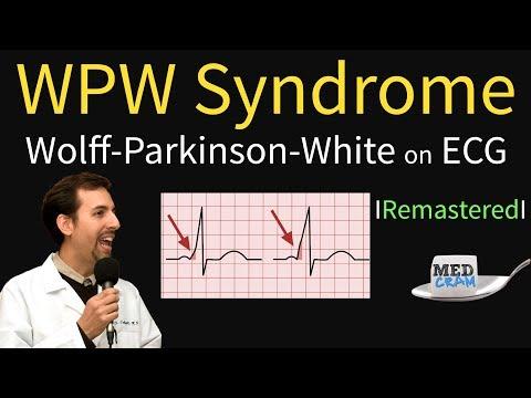 Wolff Parkinson White Syndrome On ECG - WPW Pathophysiology