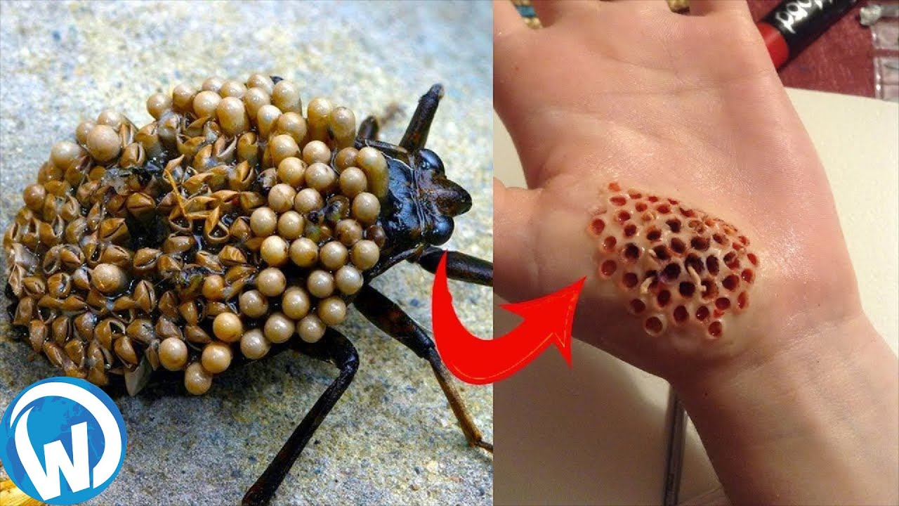 The Most Dangerous Insects In The World