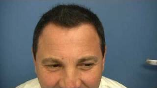 FUT Hair Transplant by Dr Hasson - 5456 Grafts - 1 Session Result