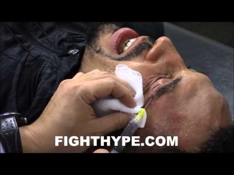 ANDRE WARD BEHIND-THE-SCENES EXCLUSIVE: GETTING STITCHED UP AFTER BEATING SULLIVAN BARRERA
