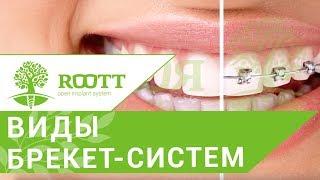 Разновидности брекетов. 😁 Каппы и разновидности брекет-системы имплантологического центра ROOTT.