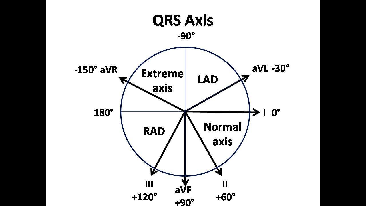 Az ecg dekódolása magas vérnyomás esetén. Pq intervallum