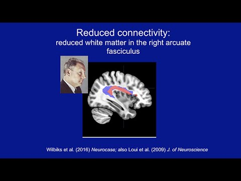 Extraordinary Variations of the Mind: Isabelle Peretz: What We Can Learn from Congenital Anomalies
