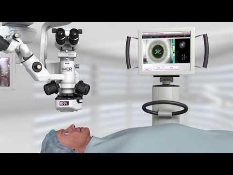 Imagen de Cálculo de LIOS ¿Interferometría, OCT o Aberrometría Intraoperatoria?