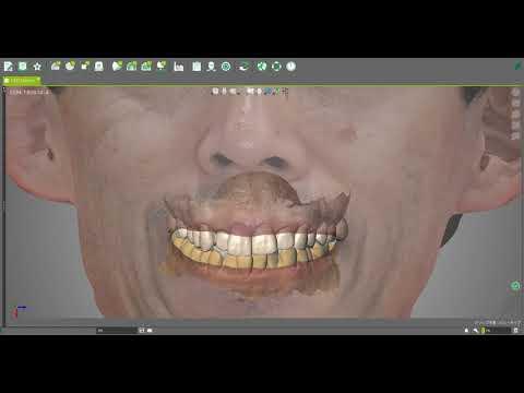 3Dカメラと口腔内スキャナーでこんなことが!
