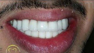 بالفيديو.. صدق او لا تصدق تبيض الاسنان خلال 15 دقيقة فقط