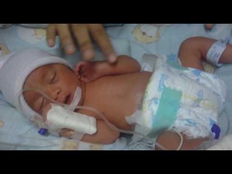 Kuasa Tuhan !! Perjuangan bayi premature 7 bulan