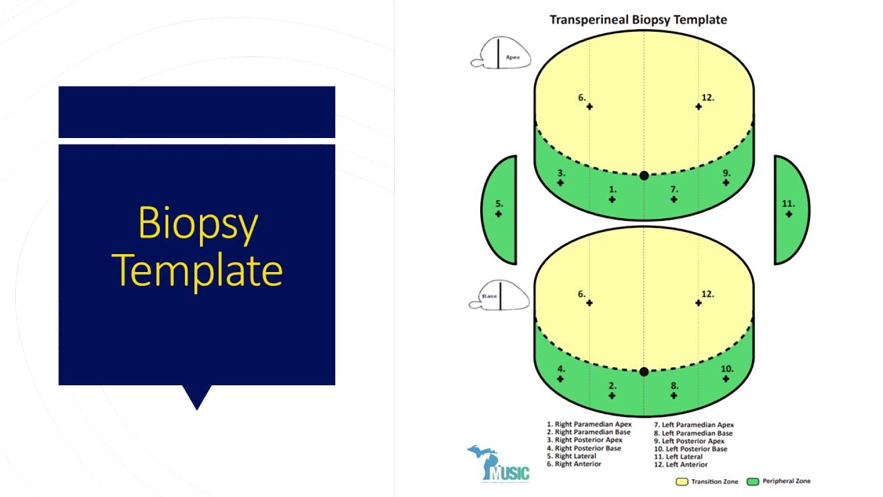 trus biopszia
