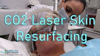 Fractionated CO2 Laser Skin Resurfacing by ArvivAesthetics.com