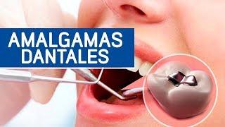 ¿Por qué debes retirar tus amalgamas dentales? YouTube Videos