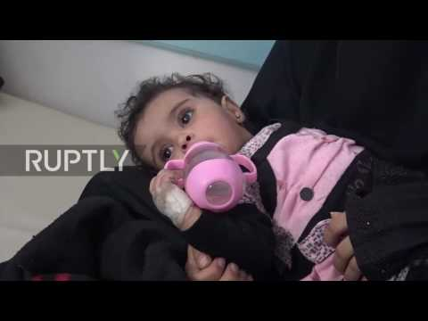 Yemen: Hospitals strained as suspected cholera cases surpass 100,000