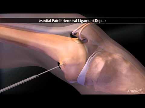 Condromalacia femuro-patelara (artroza femuro-patelara)