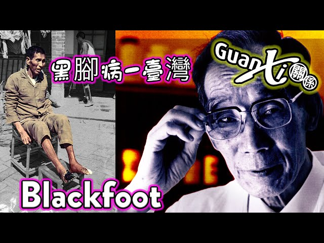 What is Blackfoot disease?  黑腳病-台灣