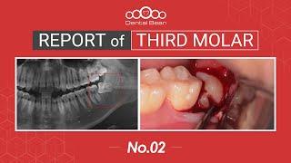 [ENG] Extraction of mesioangular Lt. Mn third molar [#Dentalbean]