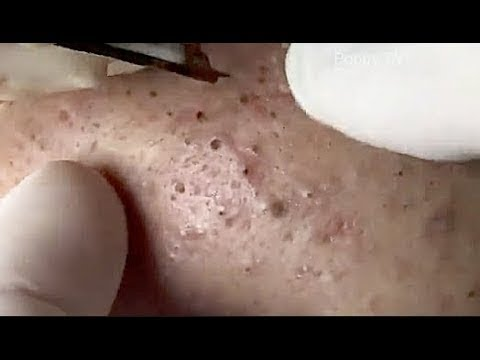 Image Result For Where To Go To Get Blackheads Removed